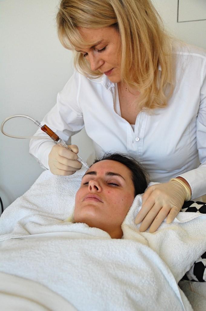 JetPeel_Beauty_Behandlung_Treatment_Hyaloronsäure_Faltenreduktion_Akne11