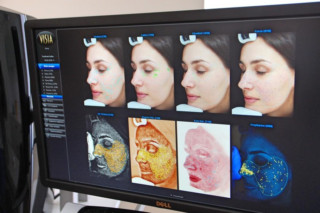 JetPeel_Beauty_Behandlung_Treatment_Hyaloronsäure_Faltenreduktion_Akne5