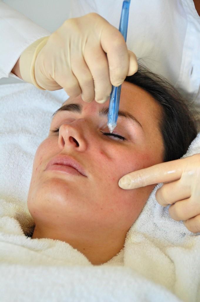 JetPeel_Beauty_Behandlung_Treatment_Hyaloronsäure_Faltenreduktion_Akne9